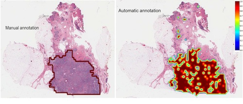 A deep-learning network improves the images of detecting aggressive breast cancers and delineated boundaries.